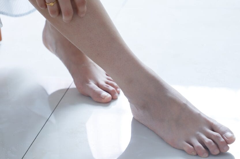 Determination of Efficacy of Reflexology in Managing Patients With Diabetic Neuropathy: A Randomized Controlled Clinical Trial